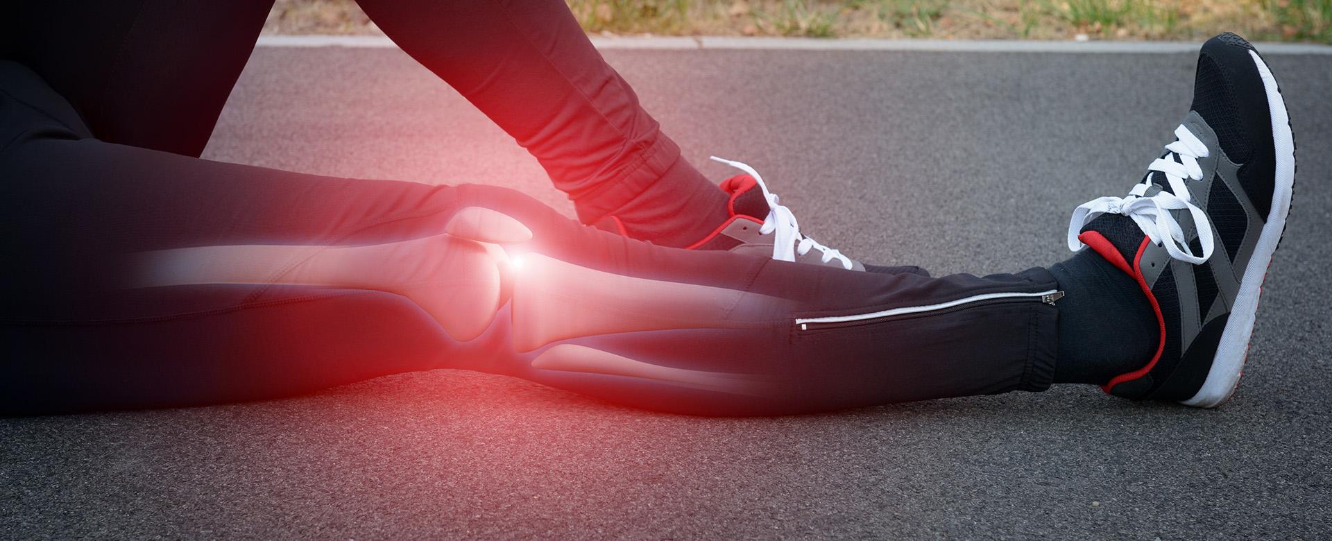 Οστεοαρθρίτιδα γόνατος κατάγματα